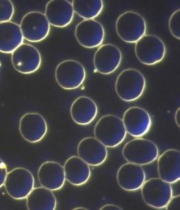 Christiane Kukulus sieht sich von ihren Patienten immer einen Tropfen Blut im Dunkelfeldmikroskop an. Im Bild sieht man die roten Blutkörperchen/ Erythrozyten (Kreise).