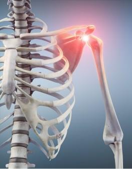 Die Beweglichkeit der Schulter nahm dramatisch ab. Das Röntgenbild ergab keine Ursache der Schmerzen.